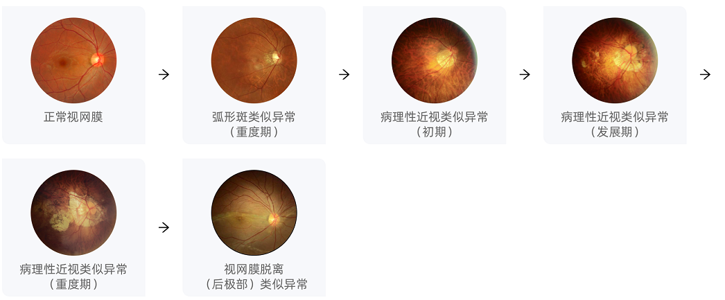 眼知健:什么是病理性近视?