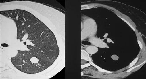 """肺结节到底是不是癌,它离""""癌""""到底有多远?"""