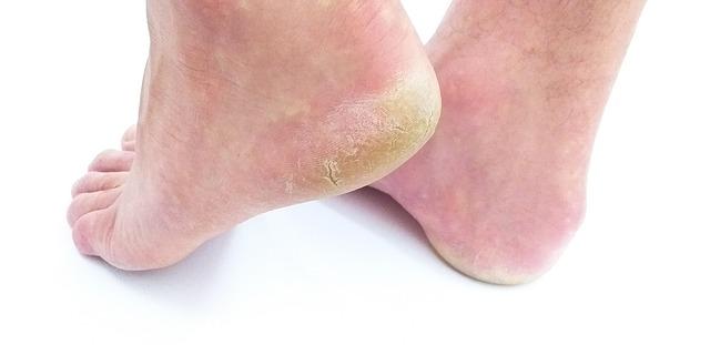脚气是一种什么病?